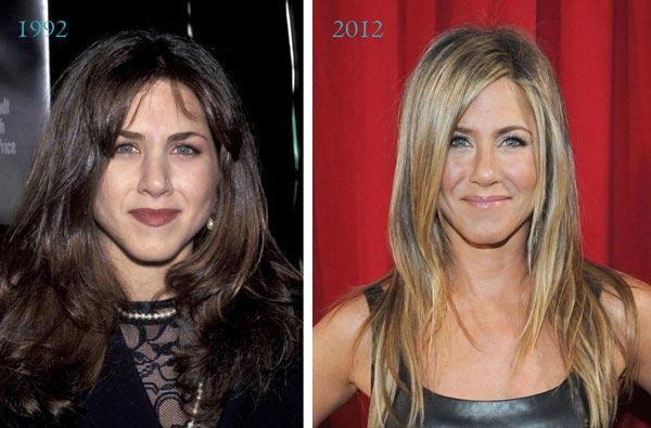 Jennifer-Aniston-Plastic-Surgery