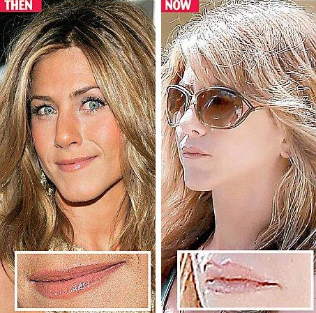 Plastic-Surgery-Jennifer-Aniston